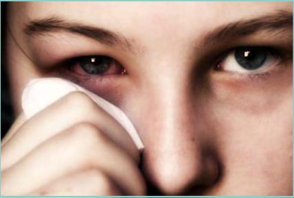 Occhio alla rinocongiuntivite allergica