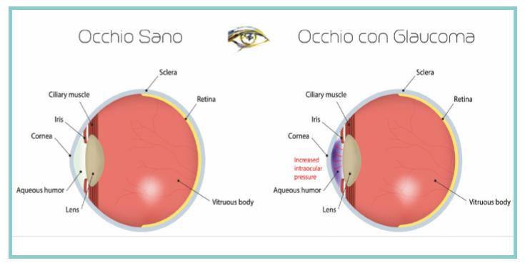 RUBRICA – FOCUS: oggi parliamo di glaucoma