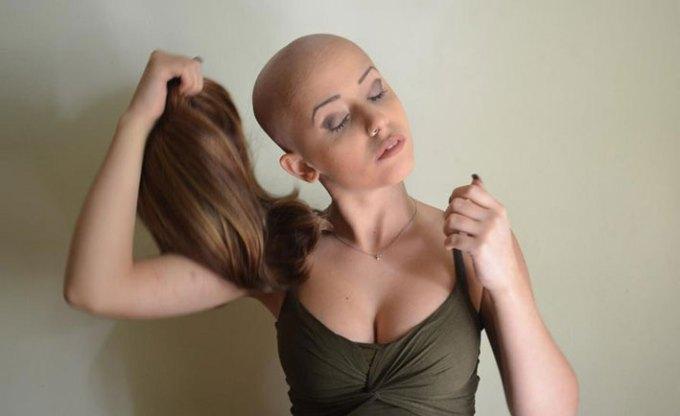 Una parrucca per non arrendersi al cancro
