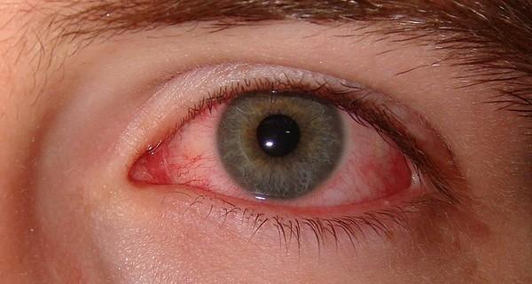 Oggi parliamo di… sindrome del dry eye