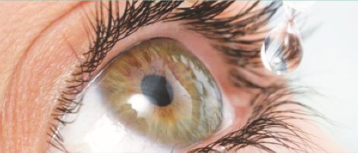 Sindrome del reflusso oculare