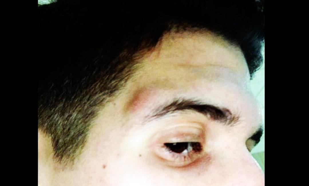 RIETI – Ancora violenza: testata all'arbitro ora in ospedale